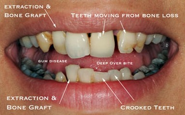 Periodontal Disease Health And Fitness