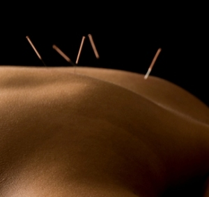 Treatment in Acupuncture Clinic