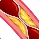 Clogged Coronary Artery