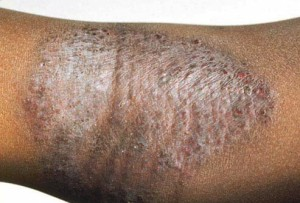 Atopic Dermatitis or Eczema