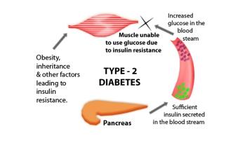Type 2 Dibeties